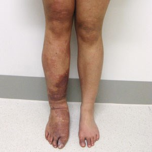 Klippel-Trenaunay Syndrome extremity